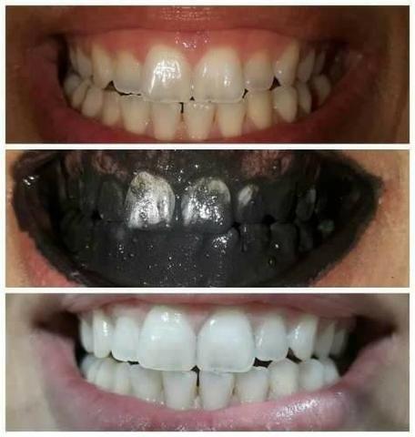 Clareador Dental 100 Natural Carvvo Beleza E Saude Vila Actura