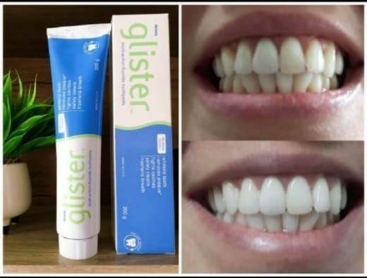 Pasta Dental Glister  - Foto 2