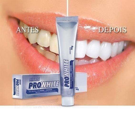 Gel Dental clareador braqueador Hinode,Itaperuna - Foto 2