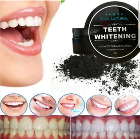 Clareamento Dental Beleza E Saude Coqueiral Cascavel 569850378