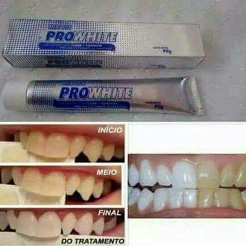 Gel clareador dental