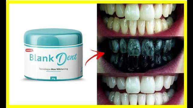 Clareador Dental Beleza E Saude Paraiso Nova Iguacu 570665737 Olx
