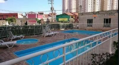 Apartamento com 2 dormitórios para alugar, 50 m² por R$ 1.350/mês - Parque Erasmo Assunção - Foto 3