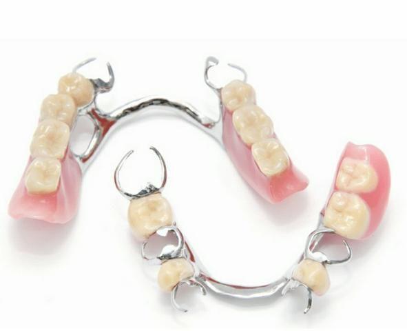 Prótese Dentária - Foto 4