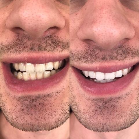 Clareador Dental 100 Natural Beleza E Saude Jardim Fontalis