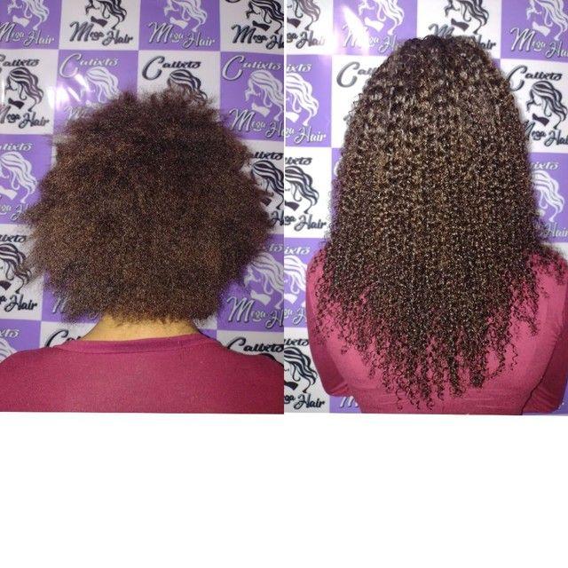 Colocação de cabelo - Foto 3