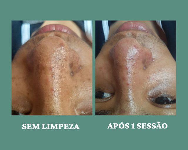 Tratamento para cravos e acnes, a domicílio  - Foto 3