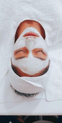 Tratamento para cravos e acnes, a domicílio  - Foto 5