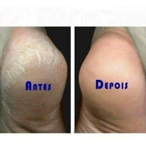 Spa dos pés + manicure - atendimento a domicílio