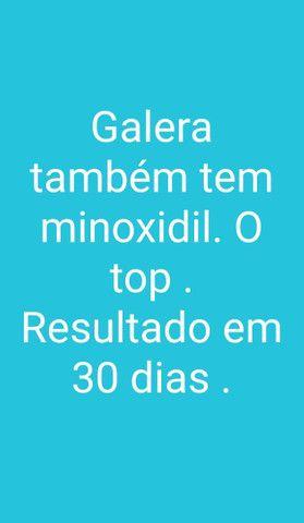 Minoxidil 5% - Foto 5