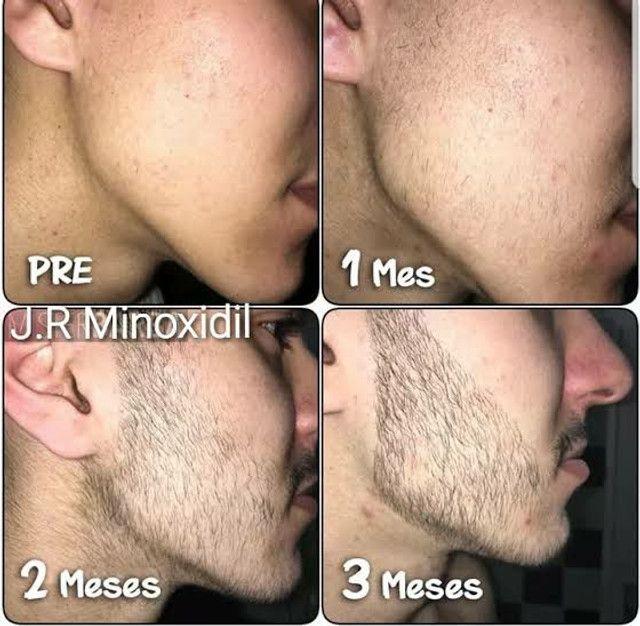Minoxidil 5% - Foto 3