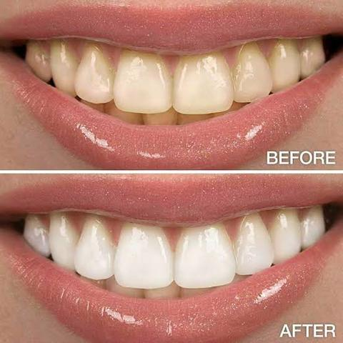 Promocao Clareador Dental Feito De Carvao Ativado 100 Natural