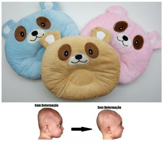 Travesseiro Bebê Para Não Achatar A Cabeça Anatômico