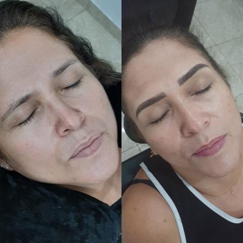 Sobrancelha Micropigmentação - Foto 3