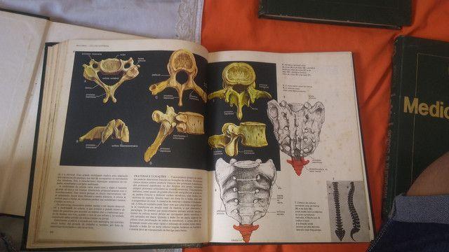 (Coletânea )de 6 livros de medicina ilustrada.livros muito informativos - Foto 4