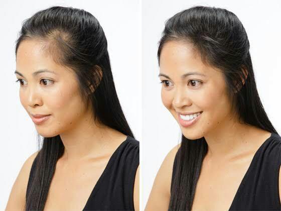 Como acabar com queda de cabelo e acelerar o crescimento - Foto 3