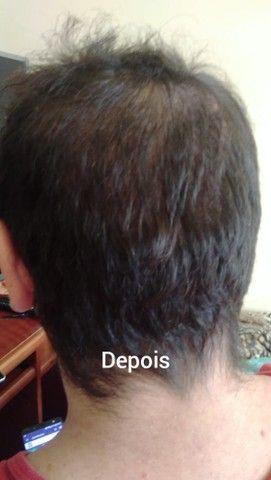 Quedas de cabelo Solução - Foto 2