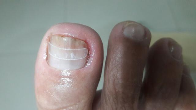 Podologa Podo Pé! cuidados da saúde dos seus pés! - Foto 3