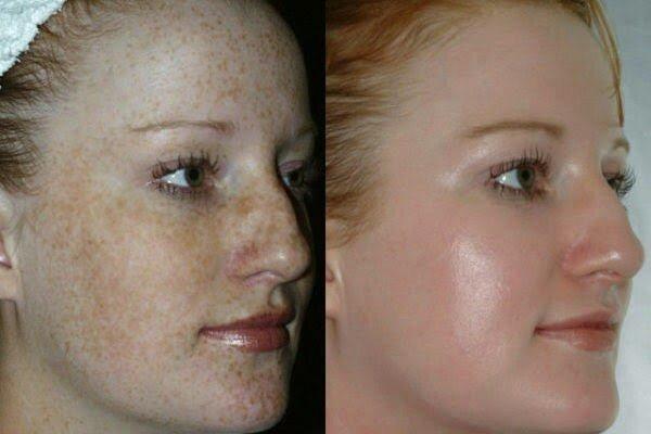Ácido glicolico para manchas do rosto