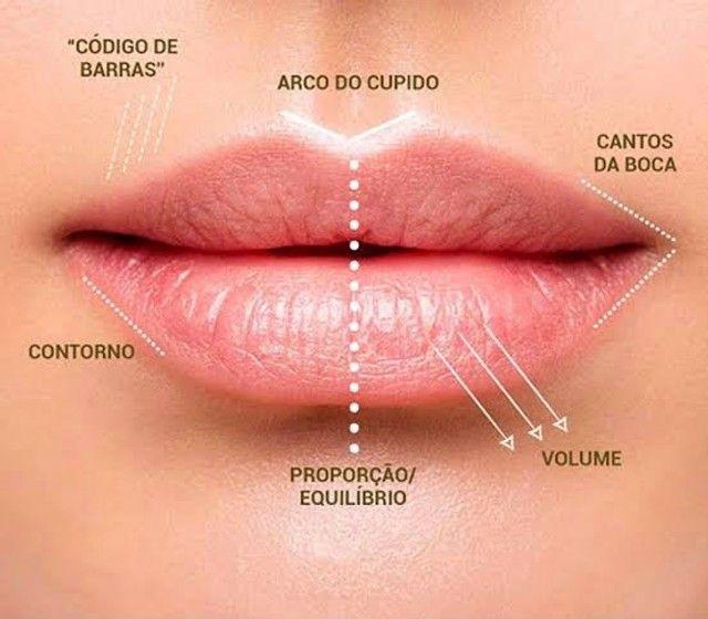 Ácido Hialurônico Injetável 10ml Loyoderm Preenchimento Facial  - Foto 4