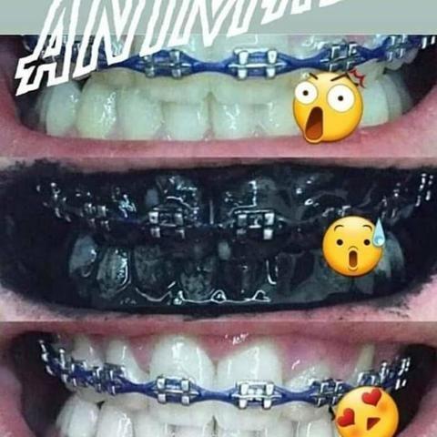 Gel dental de Carvão 70g- Clareamento dental Natural - Foto 5
