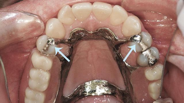 Protese dentaria - Foto 4
