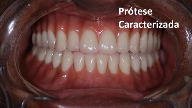 Protese dentaria - Foto 6