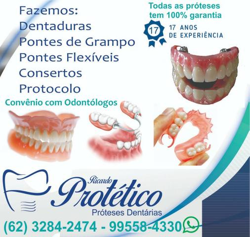 Protese dentaria - Foto 5