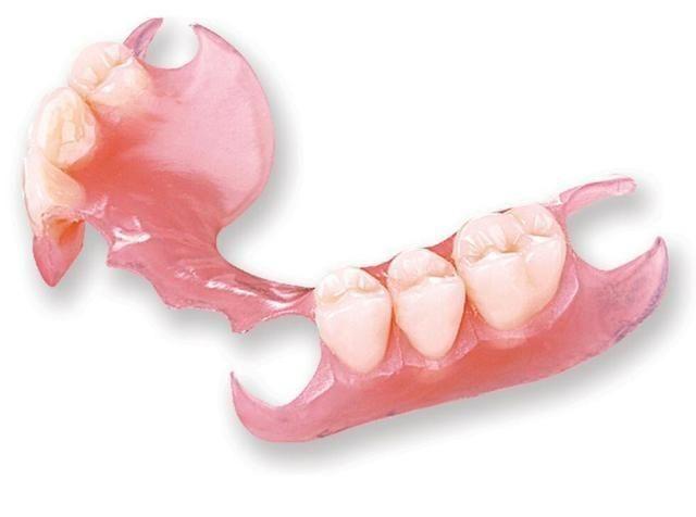 Protese dentaria - Foto 2