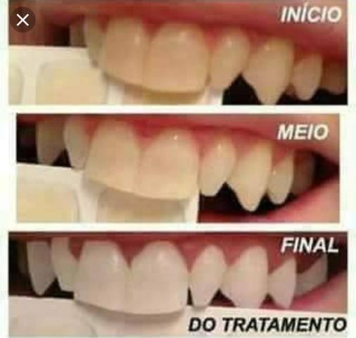 Gel Clareador O Melhor Do Brasil Beleza E Saude Vila Mirim