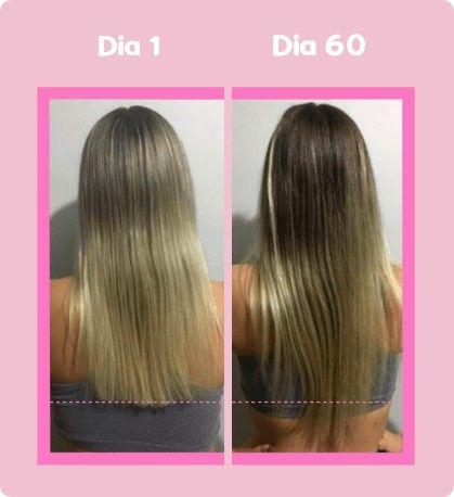 Big Hair - Foto 2