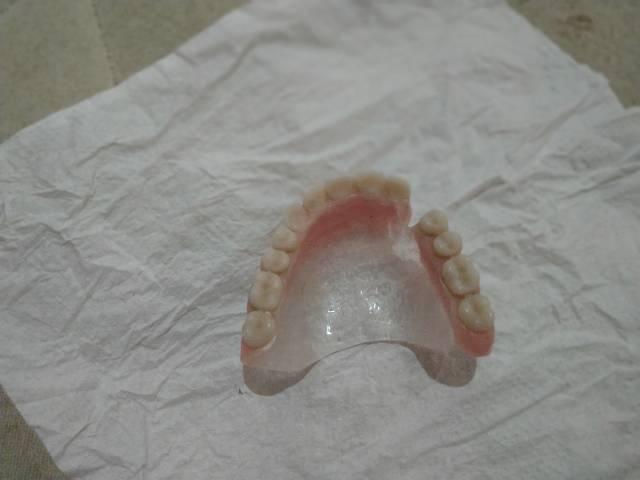 Prótese dentária para consultório - Foto 3