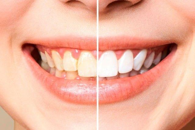 Dentes Brancos já