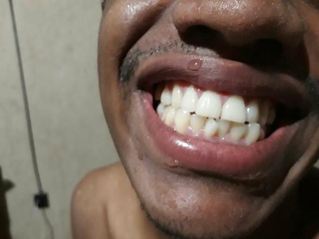 Pasta Dental branqueamento