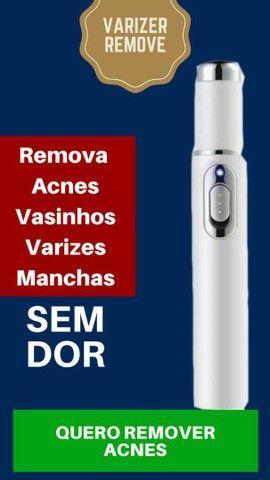 Varizer  Remover - Remova Acnes, Vasinhos, Varizes é  manchas sem dor....