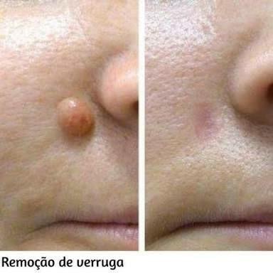 Remoção de SINAIS VERRUGAS MELASMAS CICATRIZES QUELOIDES