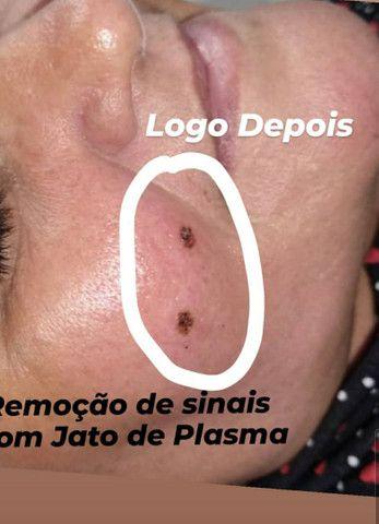 Remoção de SINAIS VERRUGAS MELASMAS CICATRIZES QUELOIDES - Foto 5