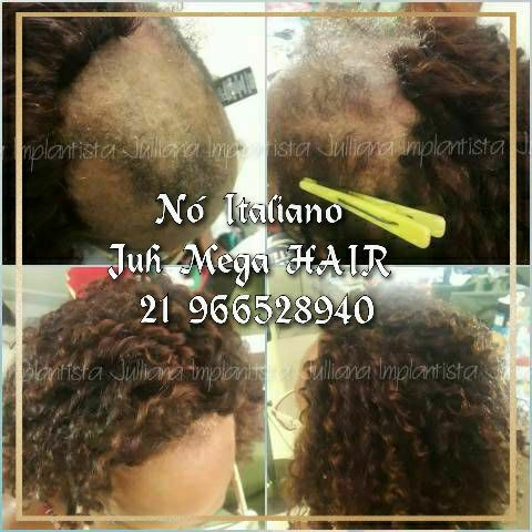 Mega hair, ponto americano,  entrelace, fita adesiva nó italiano  - Foto 2