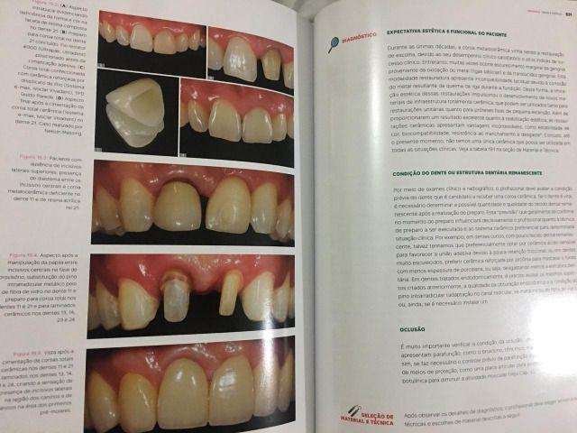 Livro de Destítica do autor Ewerton Nocci - odontologia - Foto 4