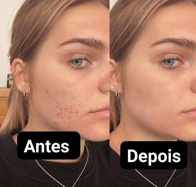 Tônico facial para eliminar Acnes e manchas importado dos EUA  - Foto 2