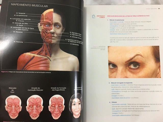 Livro de Destítica do autor Ewerton Nocci - odontologia - Foto 2