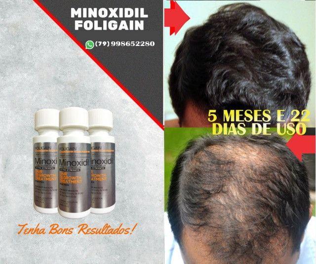 Minoxidil Foligain - Importado USA - Foto 3