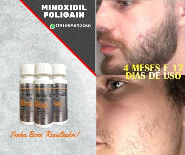 Minoxidil Foligain - Importado USA - Foto 2