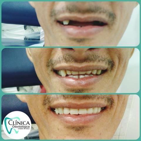 Dentista da Cidade de Deus. - Foto 3