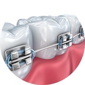 Materiais Ortodontia