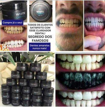 Clareador dental - Foto 3