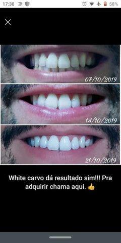 Clareador dental - Foto 4