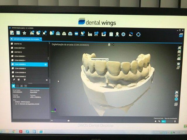 Scanner Odontologico Cad cam com impressora 3D - Foto 6