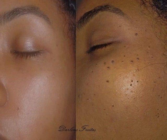 Micropigmentação e Estética - Foto 3