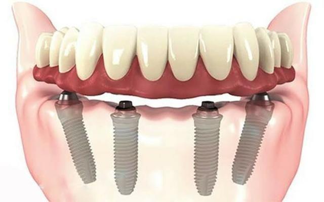 Implantes e prótese sobre implante